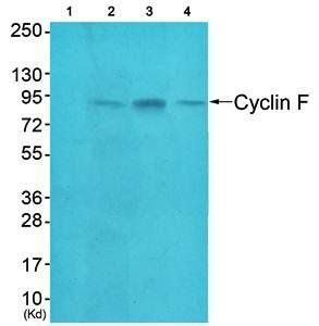 Western blot analysis of extracts from HeLa cells (Lane1), A549 cells (Lane2) and HepG2 cells (Lane3) using Cyclin F antibody