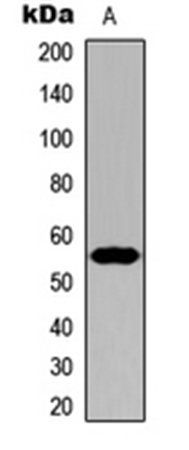 Western blot analysis of HeLa (Lane1) whole cell using CYP21A2 antibody
