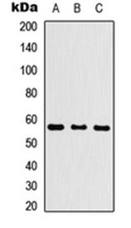 Western blot analysis of HEK293T (Lane1), Raw264.7 (Lane2), H9C2 (Lane3) whole cell using CYP26C1 antibody