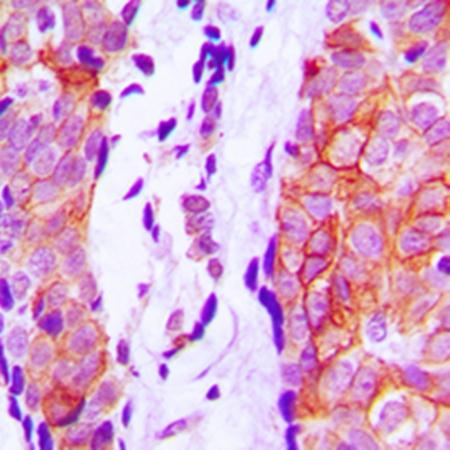 Immunohistochemical analysis of formalin-fixed and paraffin-embedded human prostate tissue using Cystatin 11 antibody