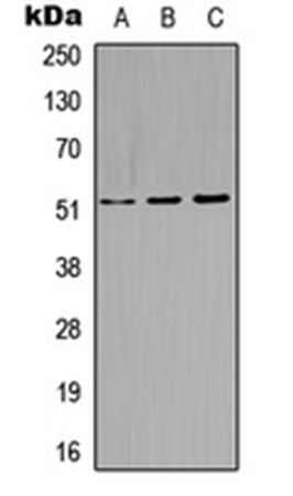 Western blot analysis of A549 (Lane1), Raw264.7 (Lane2), H9C2 (Lane3) whole cell using Cytokeratin 14 antibody