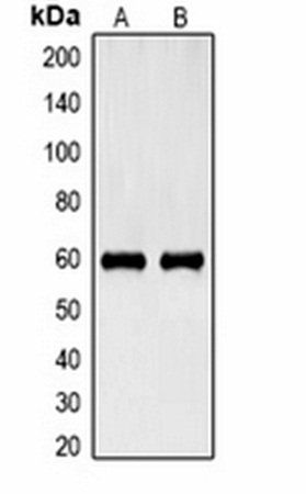 Western blot analysis of Hela (Lane 1), HepG2 (Lane 2) whole cell lysates using Cytokeratin 6 antibody
