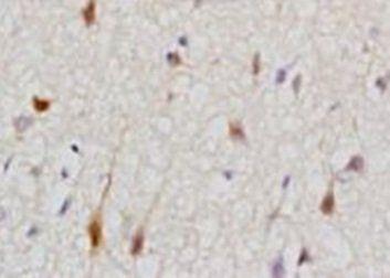 Immunohistochemical analysis of formalin-fixed paraffin embedded rat skin tissue using Cytokeratin 2 antibody (dilution at 1:200)