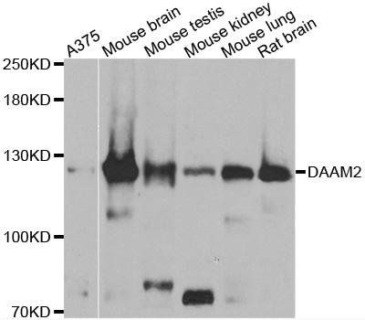 Western blot analysis of extracts of various cell lines using DAAM2 antibody