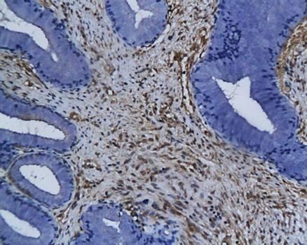 IHC-P of human cervical carcinoma tissue (DAPK3 antibody at 1:200)