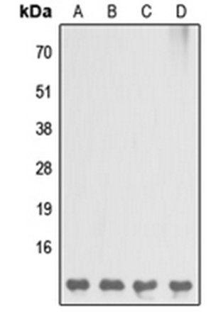 Western blot analysis of MCF7 (Lane1), Raw264.7 (Lane2), mouse liver (Lane3), H9C2 (Lane4) whole cell using DBI antibody