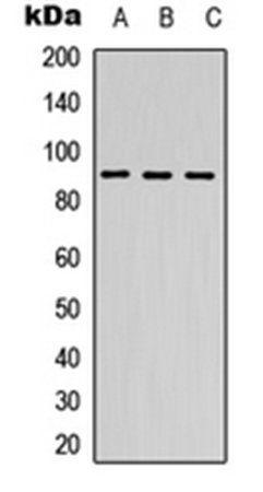 Western blot analysis of A549 (Lane1), NS-1 (Lane2), PC12 (Lane3) whole cell using DDX24 antibody