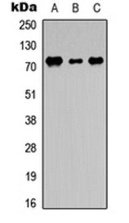 Western blot analysis of THP1 (Lane1), NS-1 (Lane2), PC12 (Lane3) whole cell using DDX3Y antibody