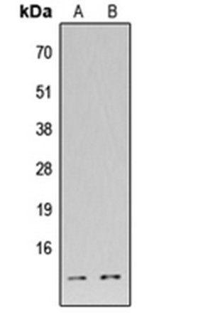 Western blot analysis of HEK293T (Lane1), H9C2 (Lane2) whole cell using DFF45 antibody