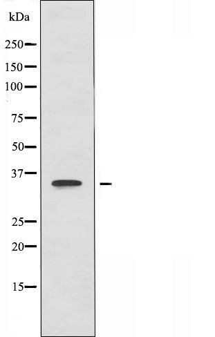 Western blot analysis of Jurkat cells using DGAT2L6 antibody