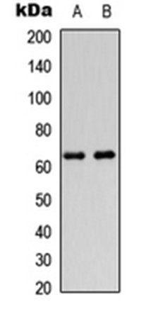 Western blot analysis of HeLa (Lane1), HEK293T (Lane2) whole cell using DGK epsilon antibody