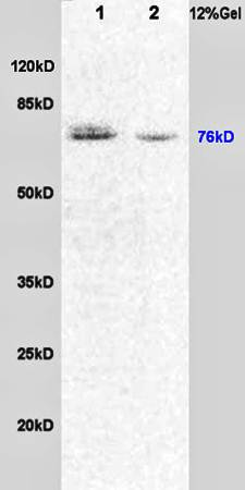 Western blot analysis of rat brain lysates(Lane1),rat lung lysates(Lane2) using Dishevelled 1 antibody