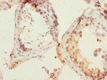 Immunohistochemical staining of Human testis using DNA-(apurinic or apyrimidinic site) lyase antibody