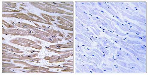 Immunohistochemical analysis of formalin-fixed and paraffin-embedded human heart tissue using DNAJB11 antibody