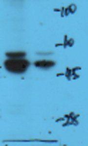 Western Blot of rat brain using Dopamine D1 receptor antibody.