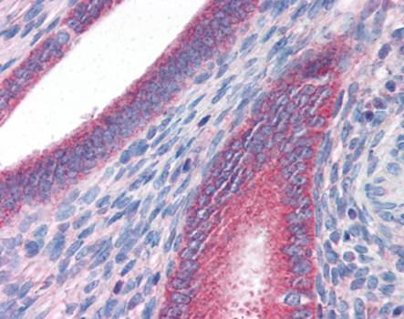 Immunohistochemical staining of paraffin embedded human uterus tissue using DRAM antibody (primary antibody at 1:200)
