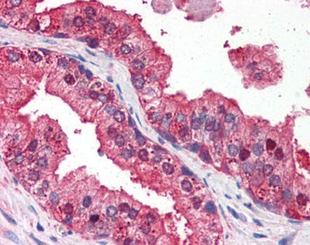 Immunohistochemical staining of paraffin embedded human prostate tissue using DRAM antibody (primary antibody at 1:200)