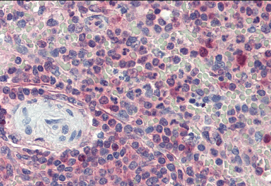 Immunohistochemical staining of paraffin embedded Human Spleen using KPNB1 antibody.