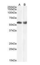 Western blot analysis of Human Duodenum (A) and Lymph Node (B) lysate using HDAC1 antibody.