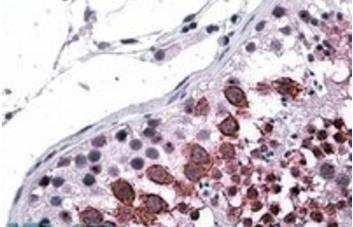 Immunohistochemical staining of Human Testis using GALR3 antibody