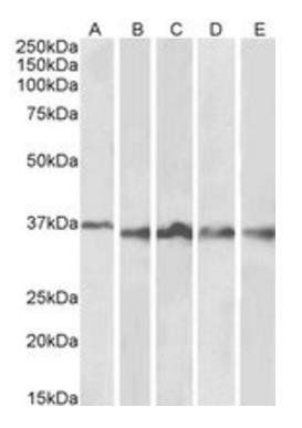 Western blot analysis of Thymus (Lane 1), Lymph Node (Lane 2), Tonsil (Lane 3), Spleen (Lane 4) and Testis (Lane 5) lysates using AURKB antibody