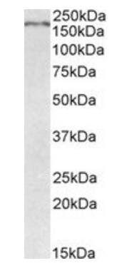 Western blot analysis of Mouse Brain lysate using Robo1 antibody