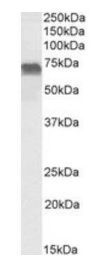 Western blot analysis of Daudi lysate using LMO6 antibody