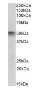 Western blot analysis of Human Skeletal Muscle lysate using ATG4C antibody
