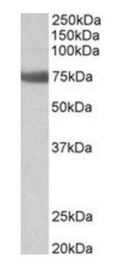 Western blot analysis of Rat Lung lysate using Tgm6 antibody