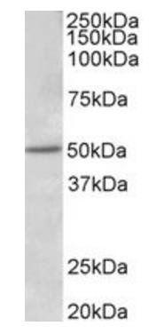 Western blot analysis of Human Placenta lysate using Estrogen Receptor beta antibody
