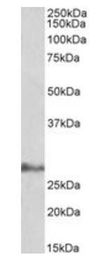 Western blot analysis of Human Adipose lysate using IL17D antibody