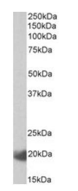 Western blot analysis of Human Lymph Node lysate using IL17C antibody