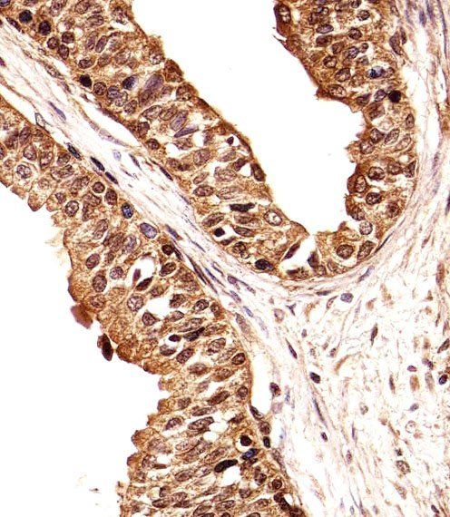 Immunohistochemical analysis of formalin-fixed and paraffin-embedded human prostate section using ECE2 antibody