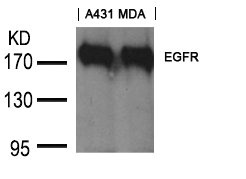 Western blot analysis of A431 and MDA cells using EGFR (Ab-1197) antibody
