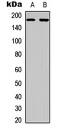 Western blot analysis of HeLa (Lane1), A431 (Lane2) whole cell using EGFR antibody