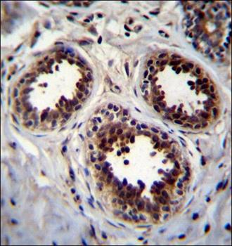 Immunohistochemical staining of paraffin embedded human breast tissue using EIF4EBP1 antibody (primary antibody dilution at: 1:10-50)