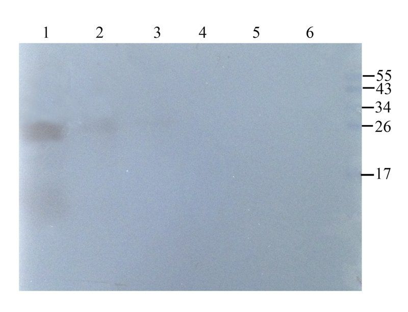 Western blot analysis of rat lung (lane 1), rat liver (lane 2), rat brain (lane 3), human breast tumour (lane 4), human thyroid tumour (lane 5), human endometrial cancer (lane 6) using Emp1 antibody (1 ug/ml)