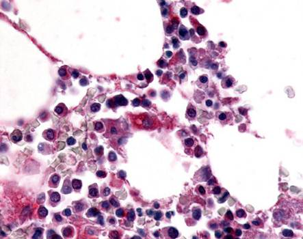 Immunohistochemical staining of paraffin embedded human bone marrow tissue using EMR1 antibody (primary antibody at 1:200)