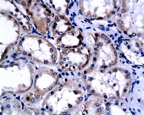 Immunohistochemical analysis of paraffin-embedded human renal cell carcinoma using Endostatin antibody