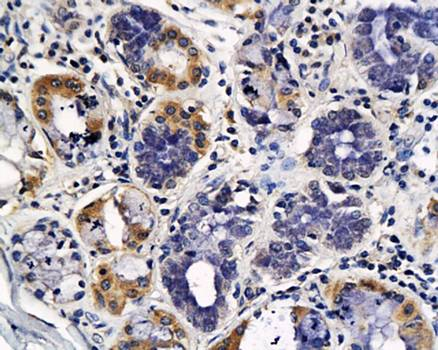 IHC-P of human lung cancer tissue (Endostatin antibody at 1:400)