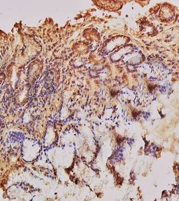 Immunohistochemical analysis of formalin fixed and paraffin embedded human gastric mucosa using Endothelin 1 antibody