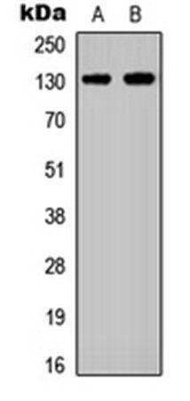 Western blot analysis of A431 (Lane1), HEK293T (Lane2) whole cell using EPHA2 antibody