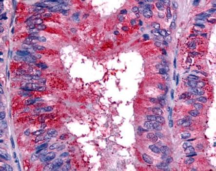 Immunohistochemical staining of paraffin embedded human colon tissue using EPHB2 antibody (primary antibody at 1:200)