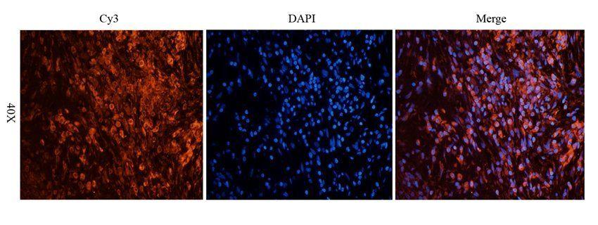 Immunofluorescence analysis of human lung cancer tissue using EPOR antibody (2.5 ug/ml)