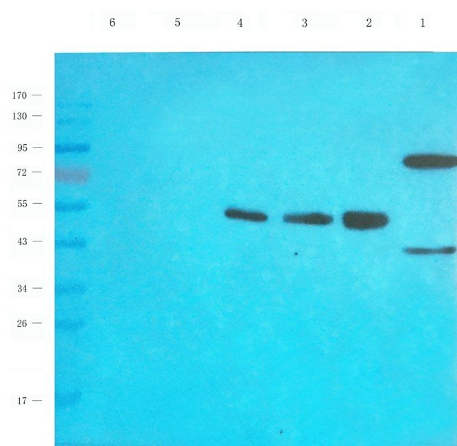 Western blot analysis of rat thyroid (lane 1), human thyroid cancer (lane 2), human breast cancer (lane 3), human lung cancer (lane 4), u251 cells (lane 5) tissue using EPOR antibody (1 ug/mL)