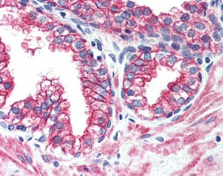 Immunohistochemical staining of paraffin embedded human prostate tissue using ERBB2 antibody (primary antibody at 1:200)