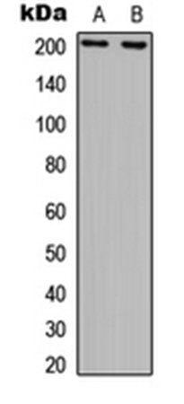 Western blot analysis of COLO205 (Lane1), GM00637 (Lane2) whole cell using ERCC5 antibody