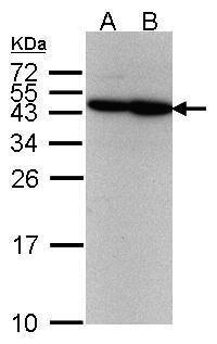 Western blot analysis of 293T(Lane 1), A431(Lane 2) using ERCC8 antibody