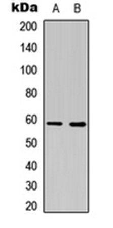 Western blot analysis of COLO205 (Lane1), NIH3T3 (Lane2) whole cell using ESR2 antibody