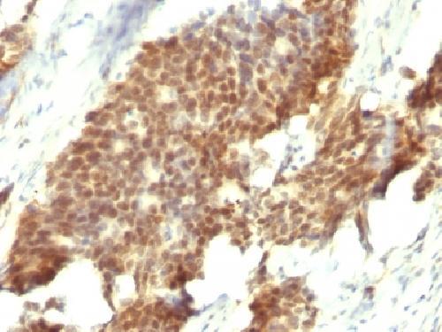 Immunohistochemical staining of human Gastric Carcinoma tissue using Estrogen Receptor beta antibody
